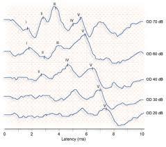 Testing 1 2 3 – CT ScanFAIL