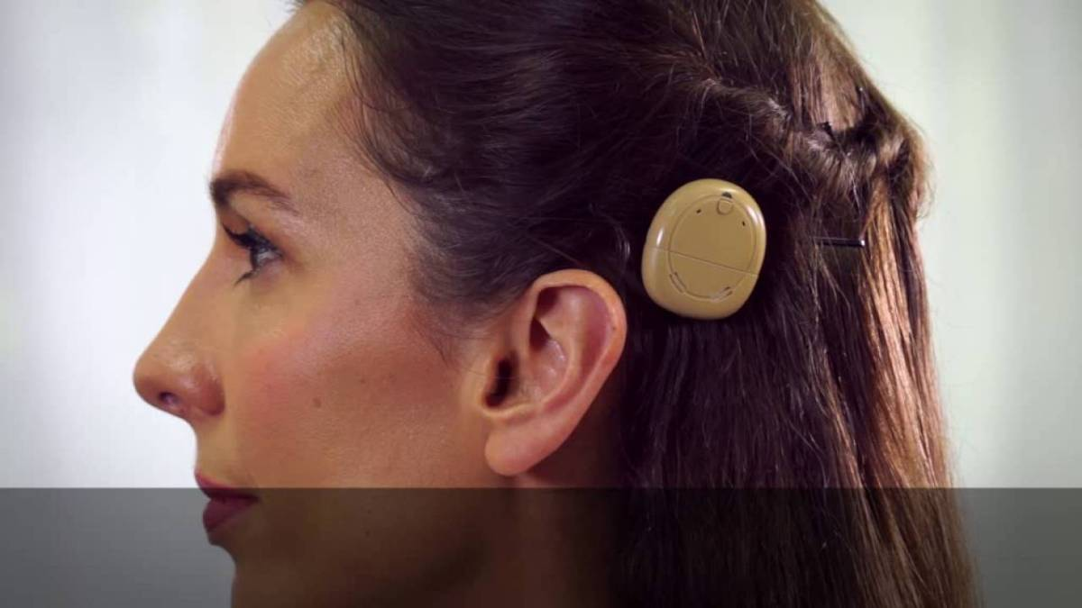 New Cochlear Devices on the Market